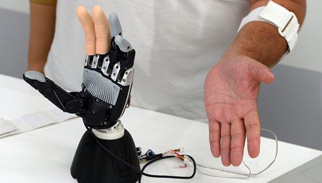 Бионический протез верхних конечностей. Архивное фото