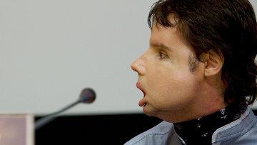 31-летнему фермеру по имени Оскар из Испании впервые в мире полностью пересадили лицо