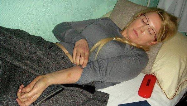 Юлия Тимошенко демонстрирует синяки на теле